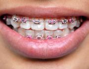ZN naar rechter om orthodontietarieven